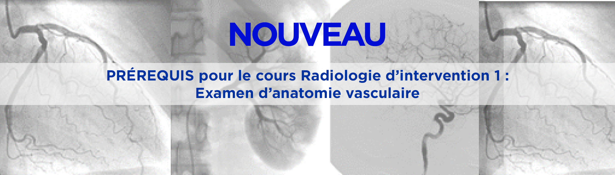 IR-Banner_Blue_FRENCH